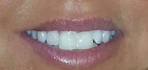 hannahs teeth