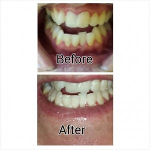 liam harris teeth