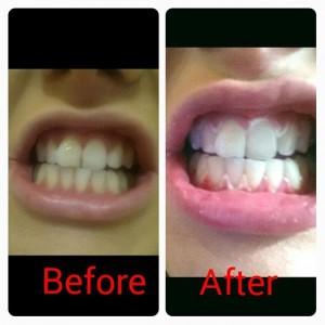 rebecca bradfords teeth