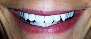 thomas jones teeth